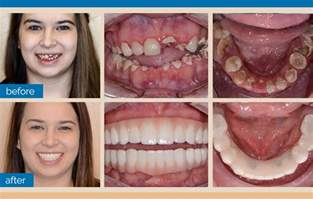 Clear Choice Dental Implants Before After