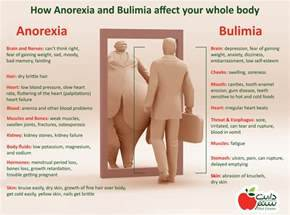The picture below shows How Anorexia and Bulimia affect your body.  Body Weight Anorexia Nervosa