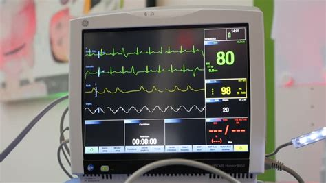 Ecg Monitor Patient's Condition In Operating Room,close Up