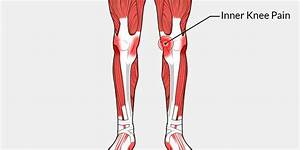 Inner Knee Pain - The Complete Injury Guide
