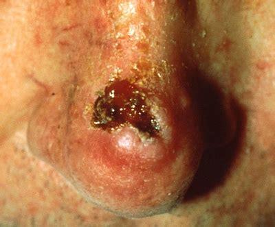 pictures  skin cancer pictures  skin cancer  face