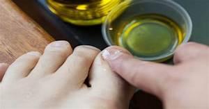 Лечению грибка ногтей лазером
