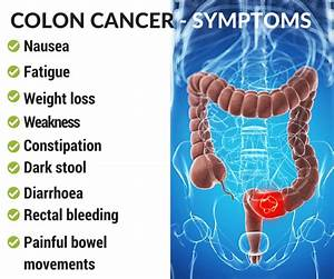 Symptoms And Treatment Of Colon Cancer