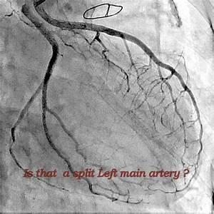 Rare Coronary Angiograms   Split Left Main Coronary Artery