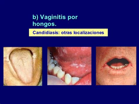 infecciones vaginales por hongos craft