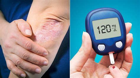 psoriasis  type  diabetes   linked everyday