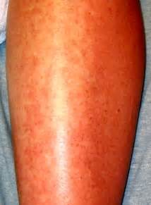 of hives is tiny red nasty bumps on your skin. After some time, hives ...  Hives Drug allergies