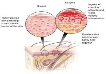 Dyshidrotic Eczema Home Remedies by Eczema Diet Review Cure Your Eczema Now