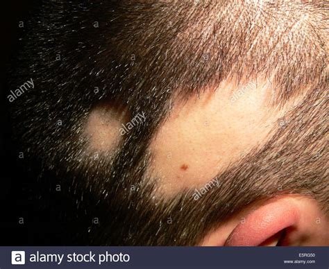 Alopecia Areata Scalp Bald Spot On The Scalp Of A Child