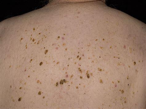Petechiën zijn rode puntjes op de huid door puntbloedingen
