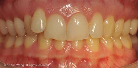 top rated dentist orthodontics  mosman park