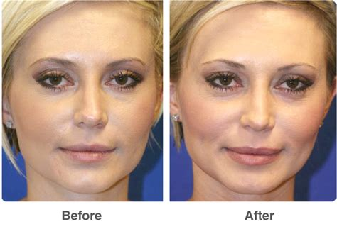 Las Vegas Cosmetic Surgery Provides Excellent Services