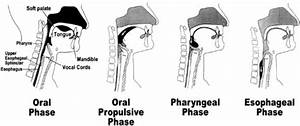Cough And Aspiration Of Food And Liquids Due To Oral-pharyngeal Dysphagia