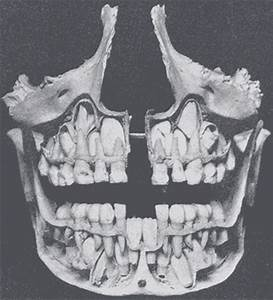 The Mouth - Human Anatomy