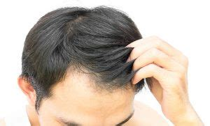 Nizoral Shedding by Finasteride Propecia Everything You Need To