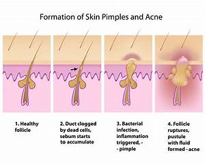 Why You Shouldn U0026 39 T Pop Pimples  U2014 And 9 Other Things To Know