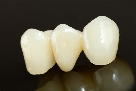 resin bonded fixed dental prostheses  year survival