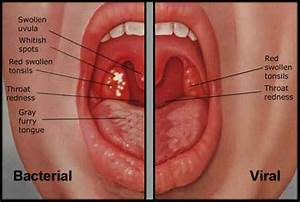 Tonsillitis Understood: Clinical Findings and Diagnosis of ...