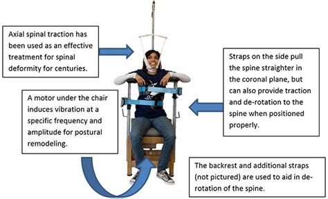 what is the scoliosis traction chair clear scoliosis