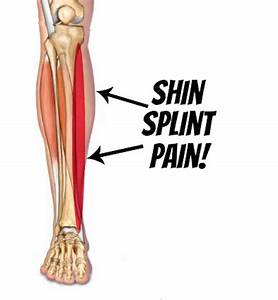 Shin Busters  What Are  U0026quot Shin Splints U0026quot  And How You Can Fix