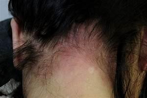 Hair Dye Reactions NHSUK