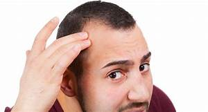 Scalp Tissue Expansion – what it entails - TheHealthSite.com Male pattern baldness