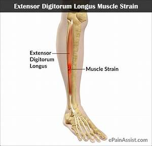 Extensor Digitorum Longus Muscle Strain