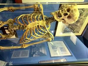 Joseph Merrick, Elephant Man, London Hospital Museum ...