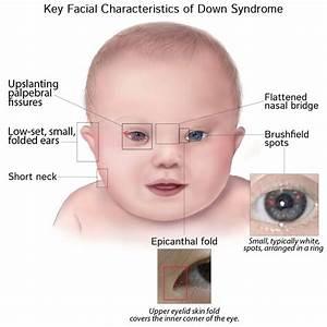 Pathology Glossary  Down Syndrome