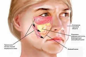 От морщин на лице димексид отзывы