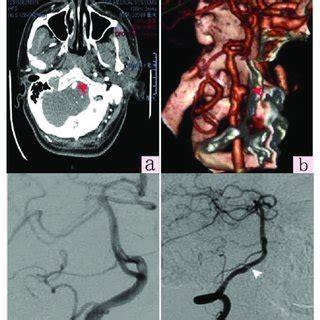 Right vertebral artery V4 segment dissection aneurysm ...