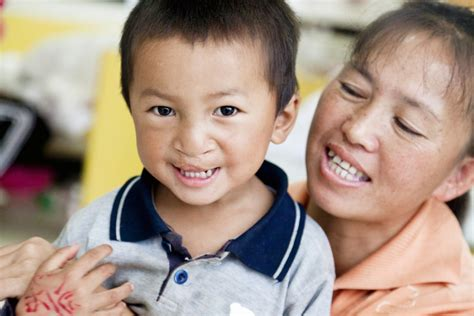 Cleft Lip Charity We Work Operation Smile Faq Operation Smile