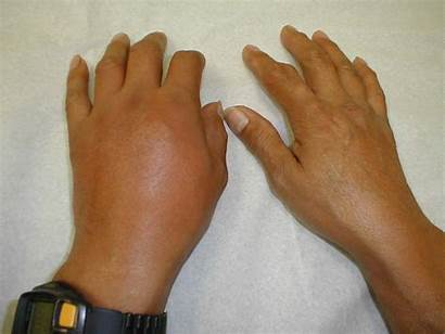 Gout Hand Mcp Swelling Patient Left Inflammation