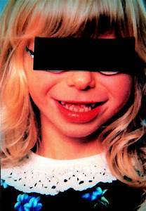 Facial And Dental Appearance Of Williams Syndrome