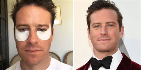 Armie Hammer Wore Eye Patches for the 2018 Oscars - Armie ...