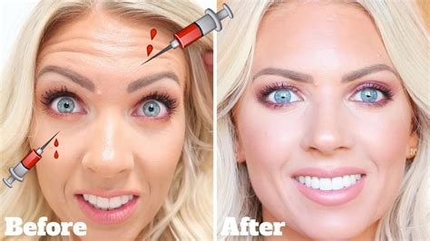 botox touch   laseraway beforeafter actual