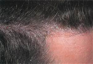 Псориаз как он проявляется симптомы и лечение