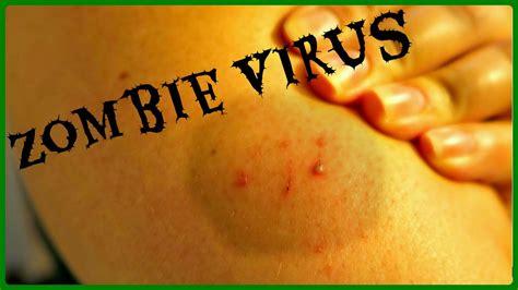 zombie virus could apocalypse