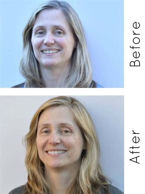 RoC RETINOL Skin Care Review with Before and After Photos