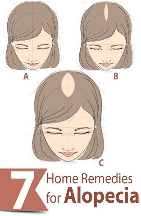 In today's busy world alopecia areta has become the common ...