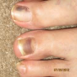 ive had a discoloration of my left big toenail grey purple