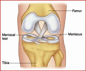 If I Develop A Meniscus Tear  What Are My Options And Do I