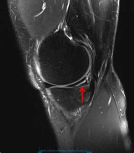 Medial Meniscus Tear | Knee Specialist | Vail, Colorado