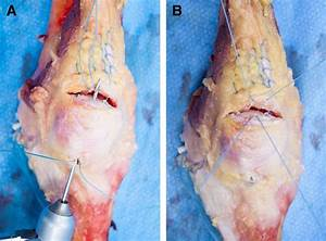 Knotless Suture Anchor With Suture Tape Quadriceps Tendon