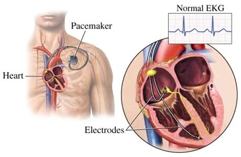 pacemaker chambre pacemaker for rhythm restores expectancy
