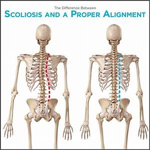 Scoliosis Types  Congenital  Neuromuscular  Degenerative