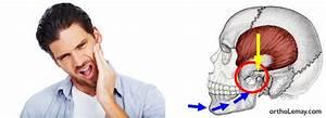 Quel Anti Inflammatoire Pour Une Douleur Dentaire : articulations temporo mandibulaires atm dysfonction et traitement ~ Medecine-chirurgie-esthetiques.com Avis de Voitures
