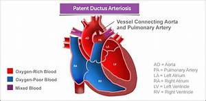 Best 25  Patent Ductus Arteriosus Ideas On Pinterest