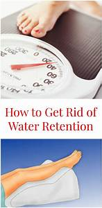 Water Retention  Formally Known As Edema  Is A Symptom Of A Number Of Conditions Including