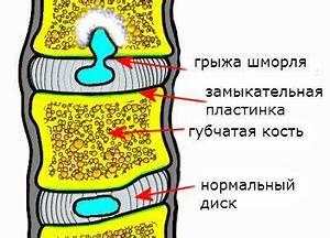 Остеохондроз грудного отдела позвоночника его лечение